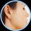 ico-orelha